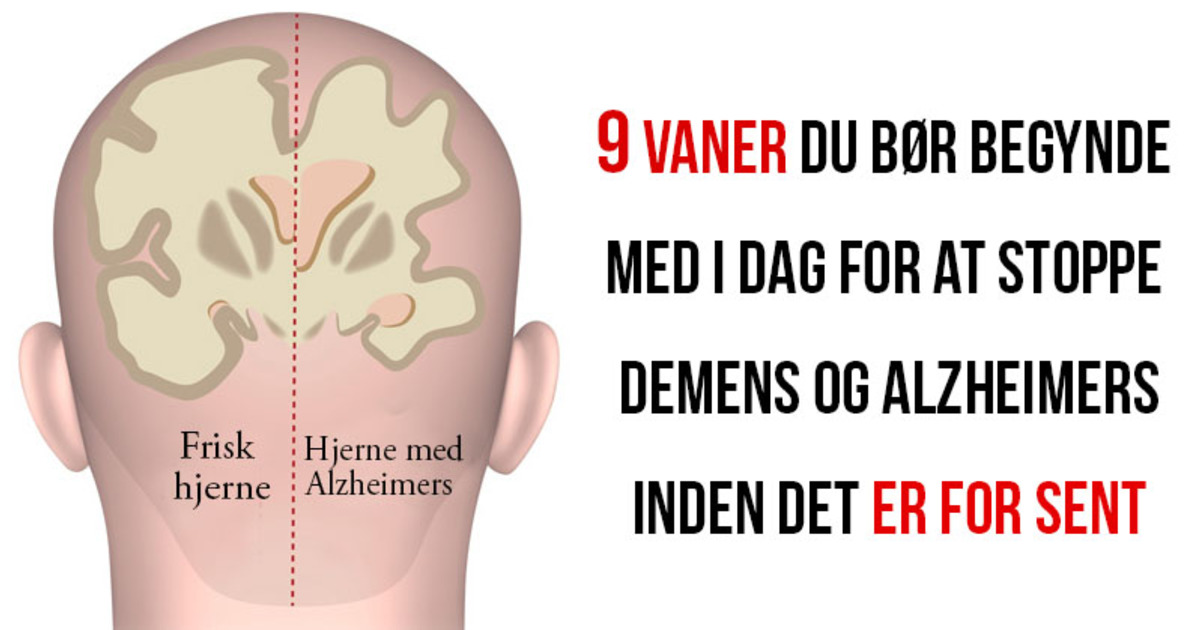 hvad er alzheimers demens