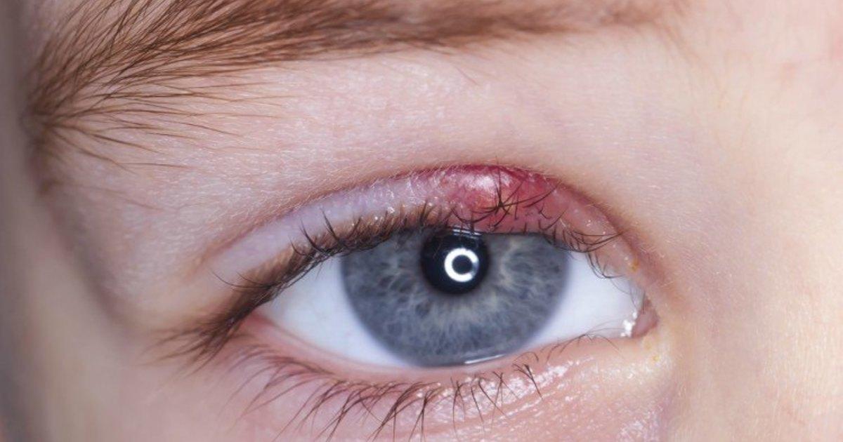 Sæbe i øjet