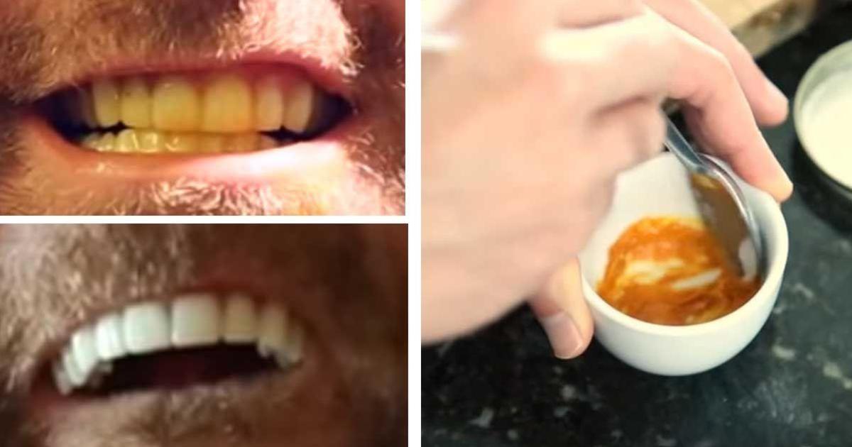 hvide tænder bagepulver