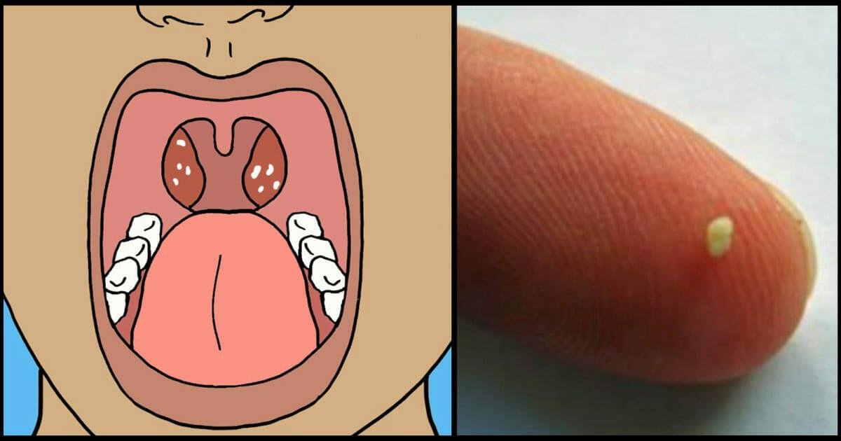 ondt i halsen efter operation