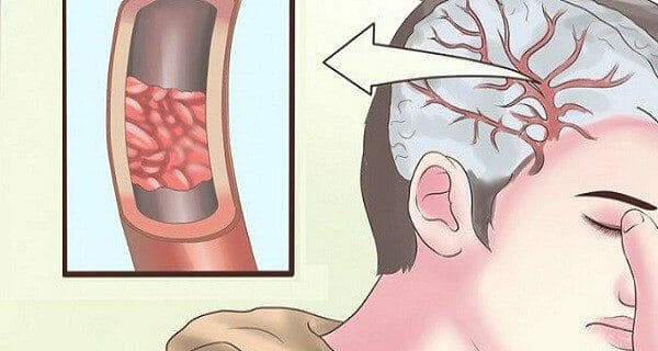 d3 vitaminmangel symptomer
