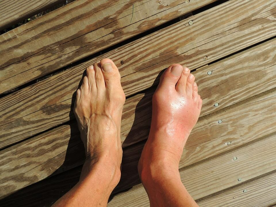 Dicke füße ursachen