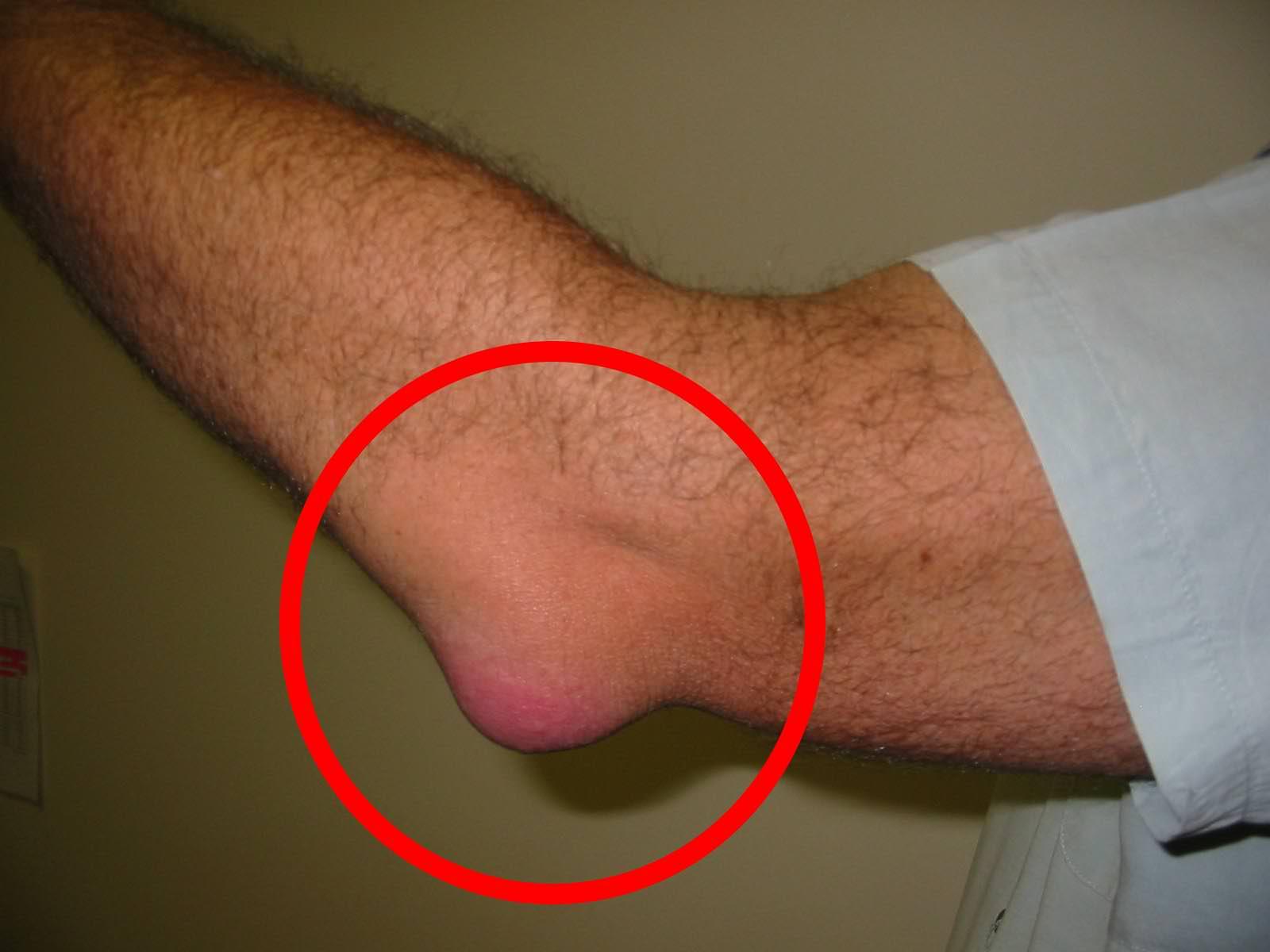 Bein- und Fußerkrankungen
