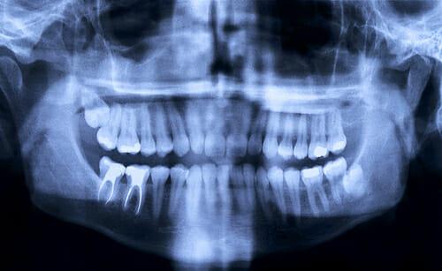Tideglusib Zähne