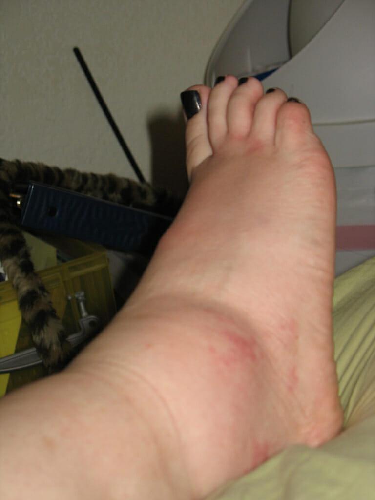 Do inchada meu pé superior parte está