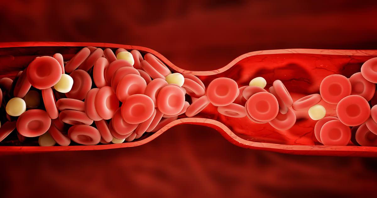 Je lichaam waarschuwt je voor een bloedklonter: 8 verborgen ...