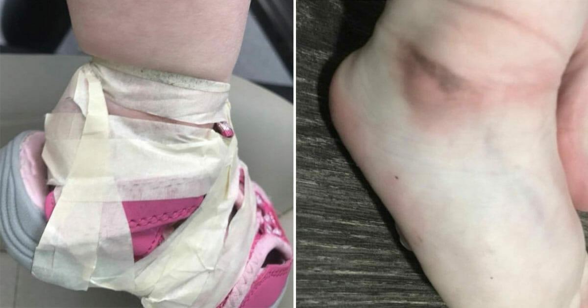 b15f1082596 Personeel op kinderopvang tapet peuterschoenen zo strak aan haar enkels dat  er sporen achterblijven: moeder kookt van woede
