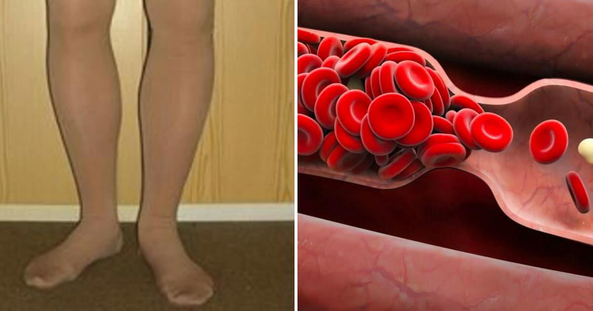 Votre corps vous avertit quand un caillot de sang se forme ...